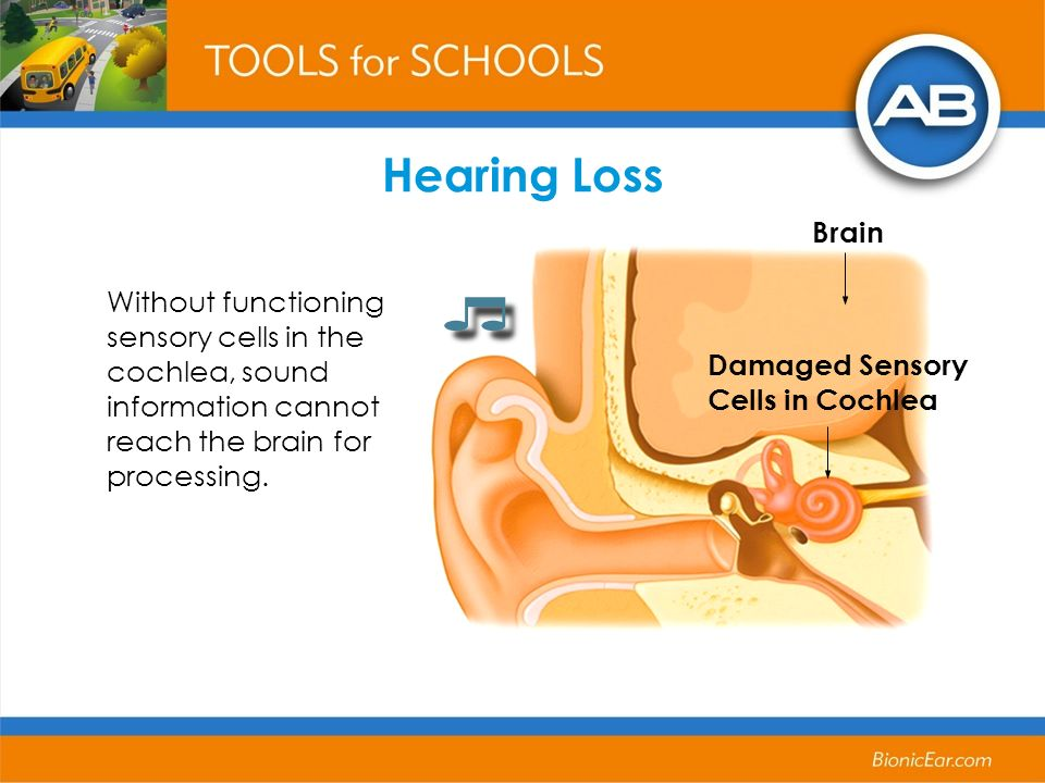 Without functioning sensory cells in the cochlea, sound information cannot reach the brain for processing. Damaged Sensory Cells in Cochlea Hearing Lo