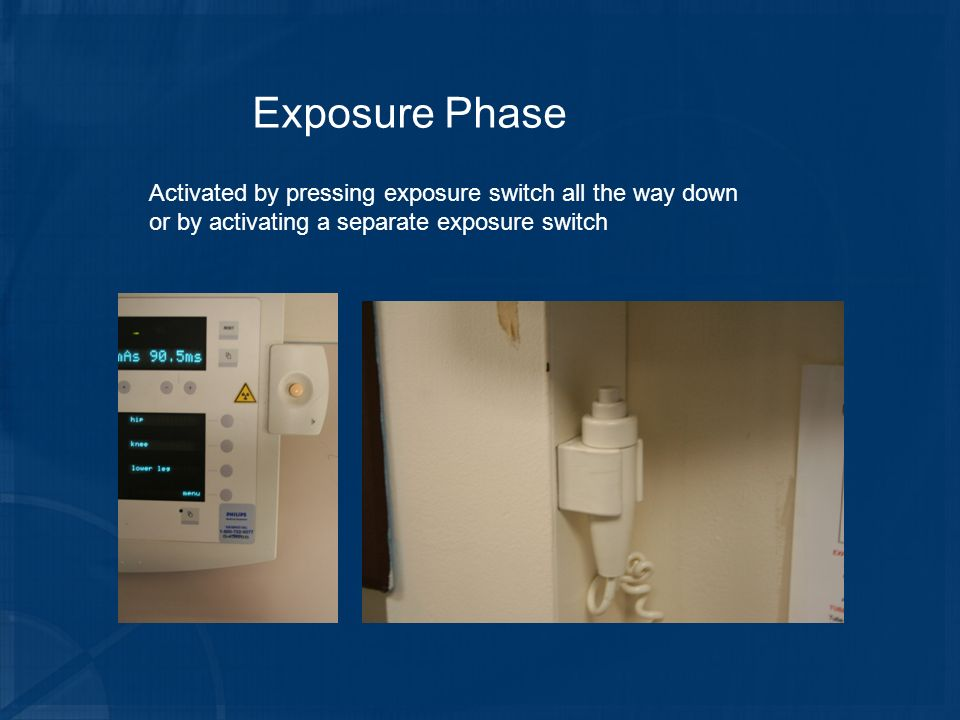 Exposure Phase Activated by pressing exposure switch all the way down or by activating a separate exposure switch