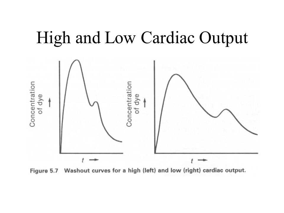 High and Low Cardiac Output