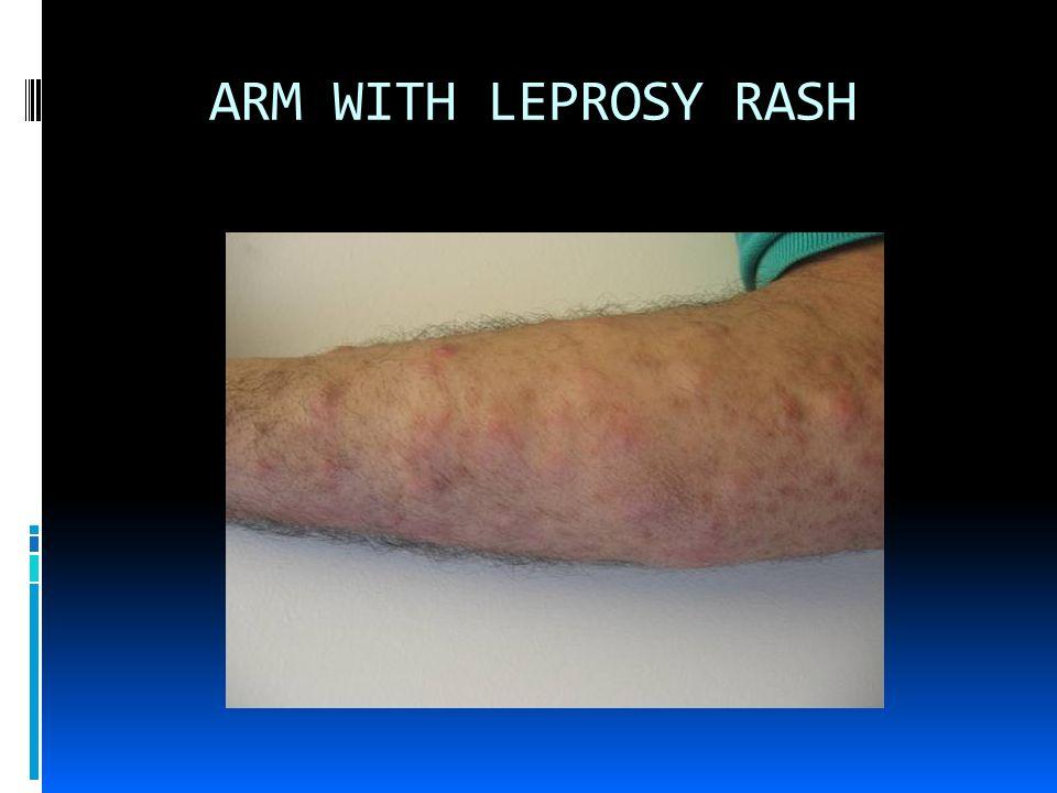 SYMMETRICAL LEPROSY RASH ON LEGS