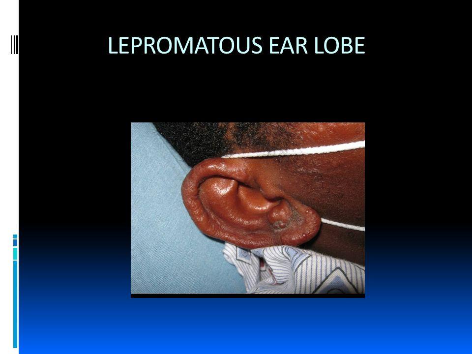 LEPROMATOUS EAR LOBE