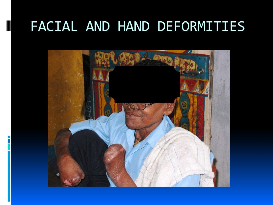 MORBIDTIES FROM LEPROSY Irreversible peripheral nerve damage Loss of sensation in affected areas Ulcers and loss of digits Blindness Facial distortion Stigmatization and social seclusion Disabilities link: