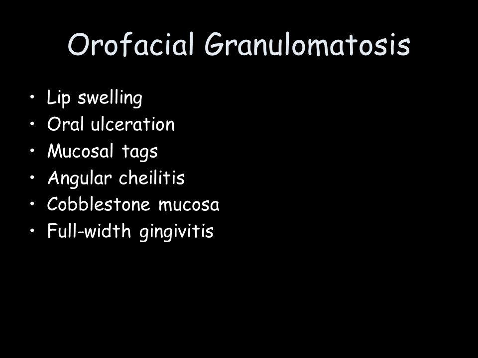 Orofacial Granulomatosis Lip swelling Oral ulceration Mucosal tags Angular cheilitis Cobblestone mucosa Full-width gingivitis
