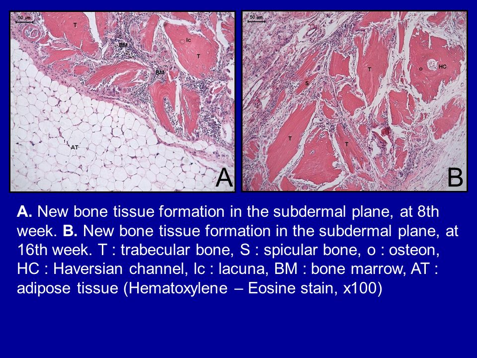 A. New bone tissue formation in the subdermal plane, at 8th week. B. New bone tissue formation in the subdermal plane, at 16th week. T : trabecular bo