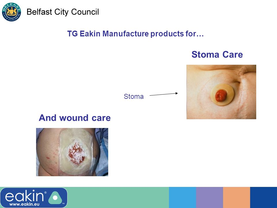 TG Eakin Manufacture products for… Stoma And wound care Stoma Care