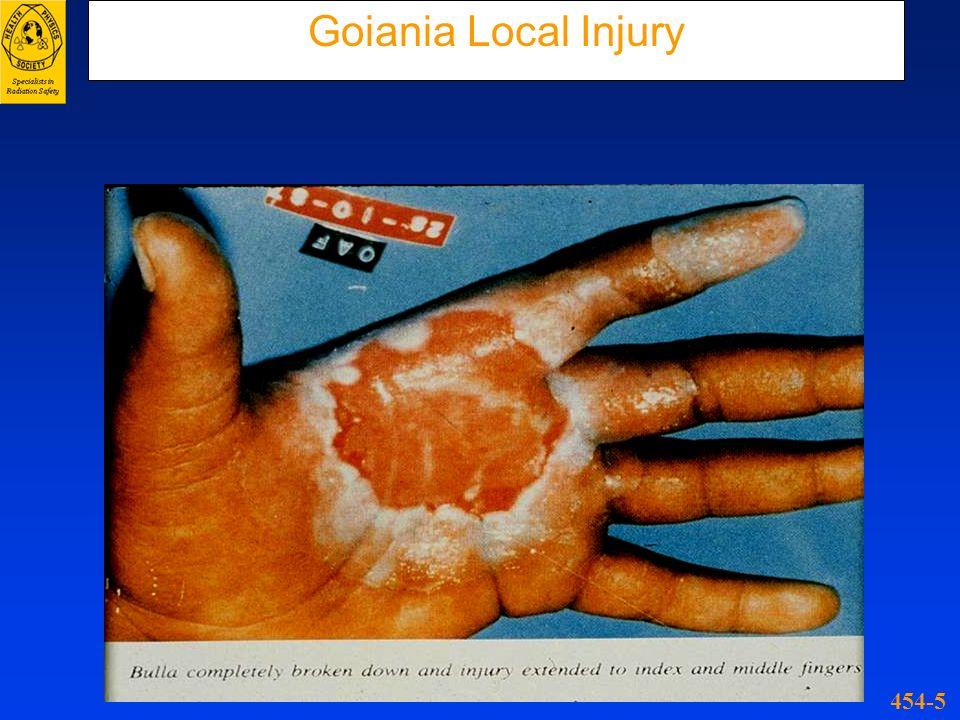Goiania Local Injury 454-5
