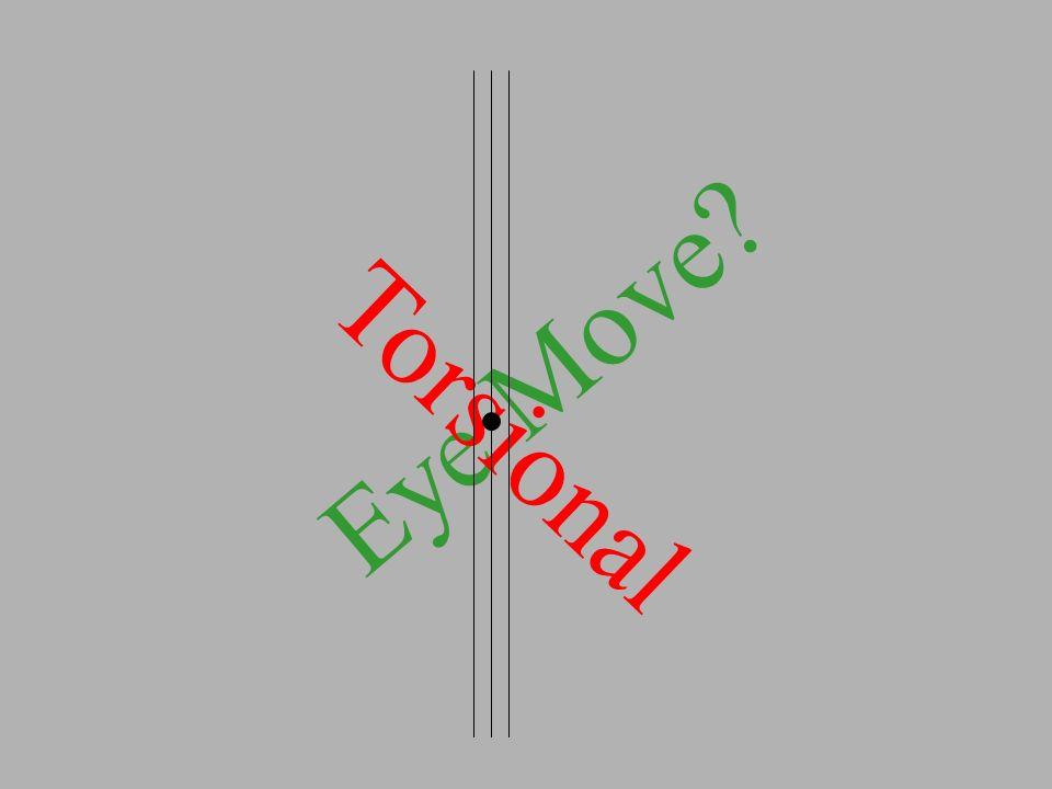 Eye Move? Torsional