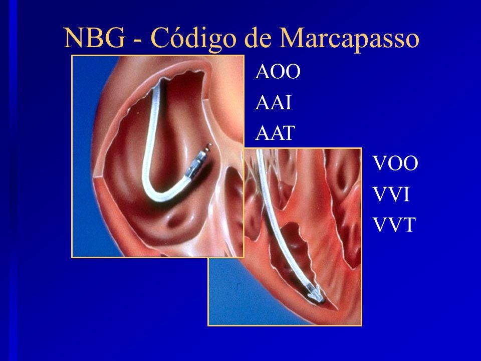 AOO AAI AAT VOO VVI VVT NBG - Código de Marcapasso