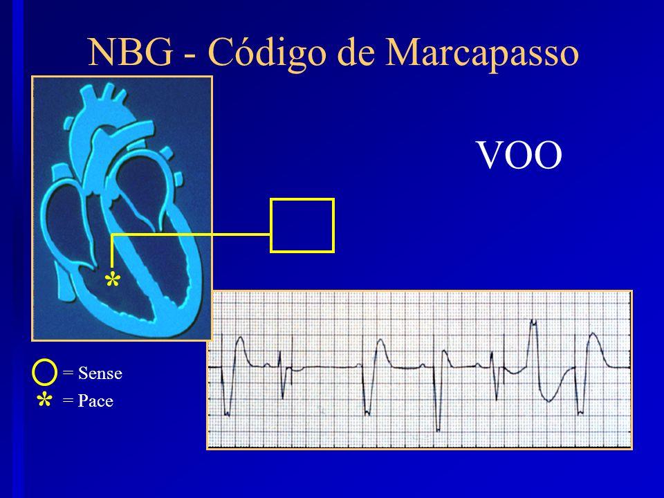 VOO * NBG - Código de Marcapasso * = Sense = Pace