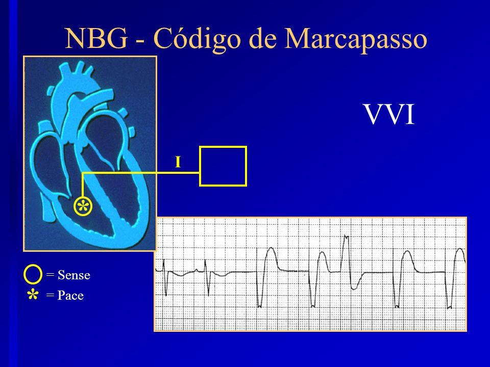 VVI * NBG - Código de Marcapasso I * = Sense = Pace