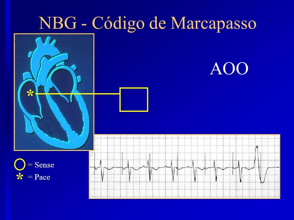 AOO * NBG - Código de Marcapasso * = Sense = Pace