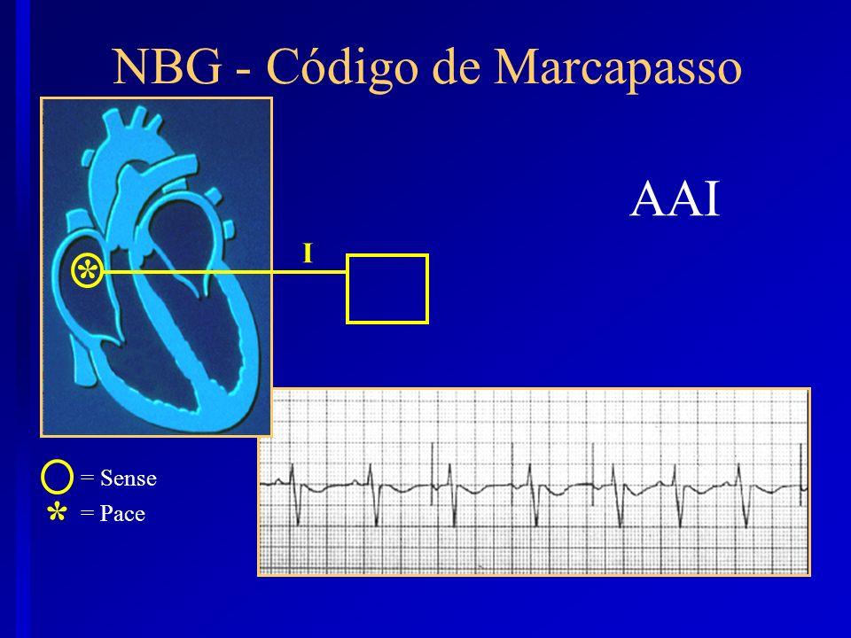 AAI I * NBG - Código de Marcapasso * = Sense = Pace