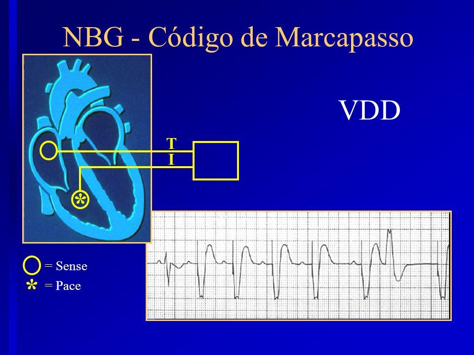 VDD T I * = Sense = Pace * NBG - Código de Marcapasso