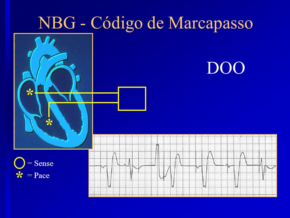 DOO * = Sense = Pace * * NBG - Código de Marcapasso