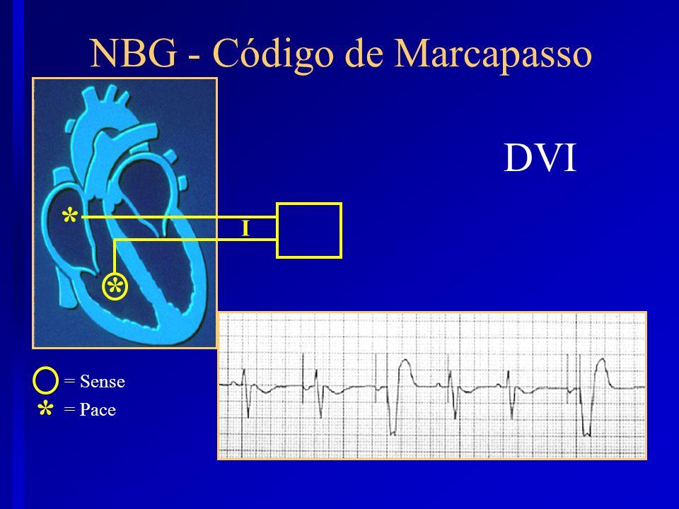 DVI I * = Sense = Pace NBG - Código de Marcapasso * *