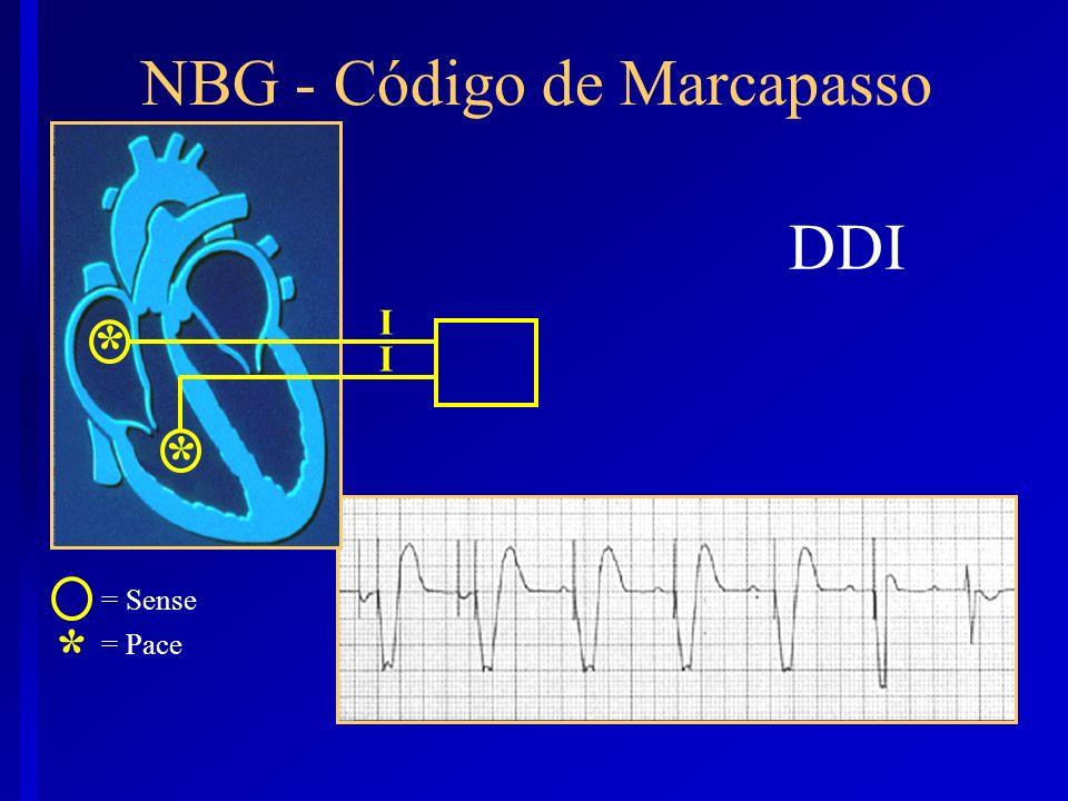 DDI * = Sense = Pace NBG - Código de Marcapasso I * * I