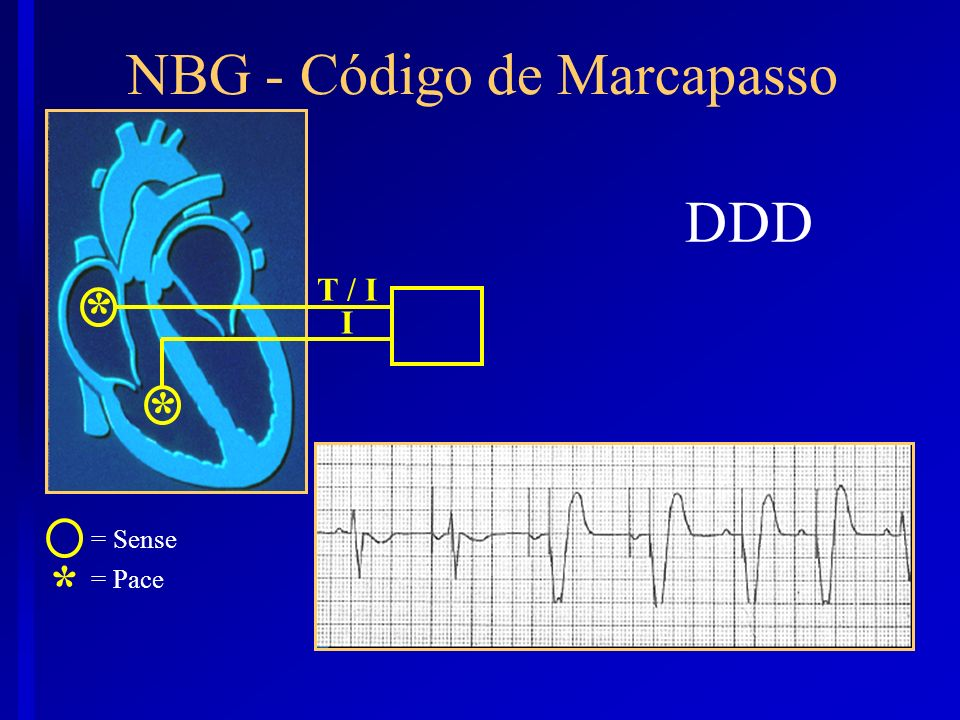 DDD * = Sense = Pace NBG - Código de Marcapasso I * * T / I