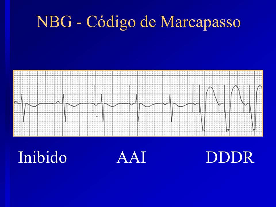 NBG - Código de Marcapasso InibidoAAIDDDR