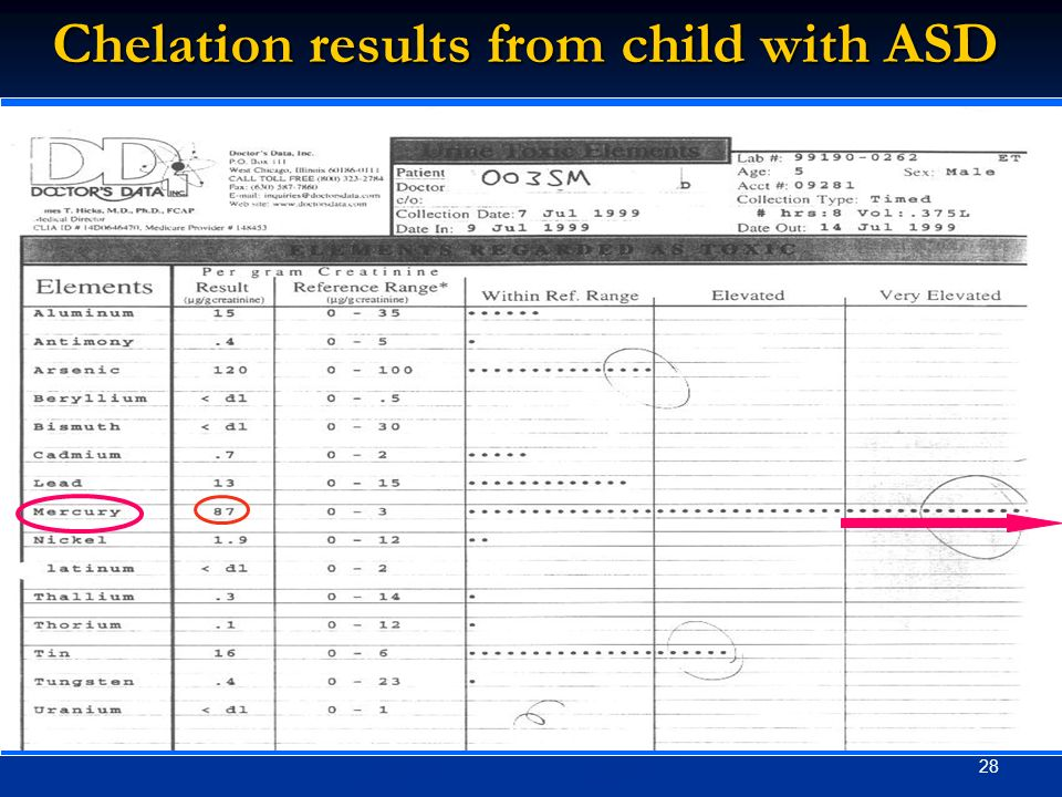 28 Chelation results from child with ASD
