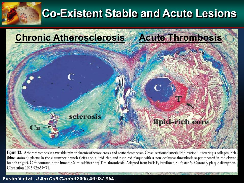 Fuster V et al. J Am Coll Cardiol 2005;46:937-954.