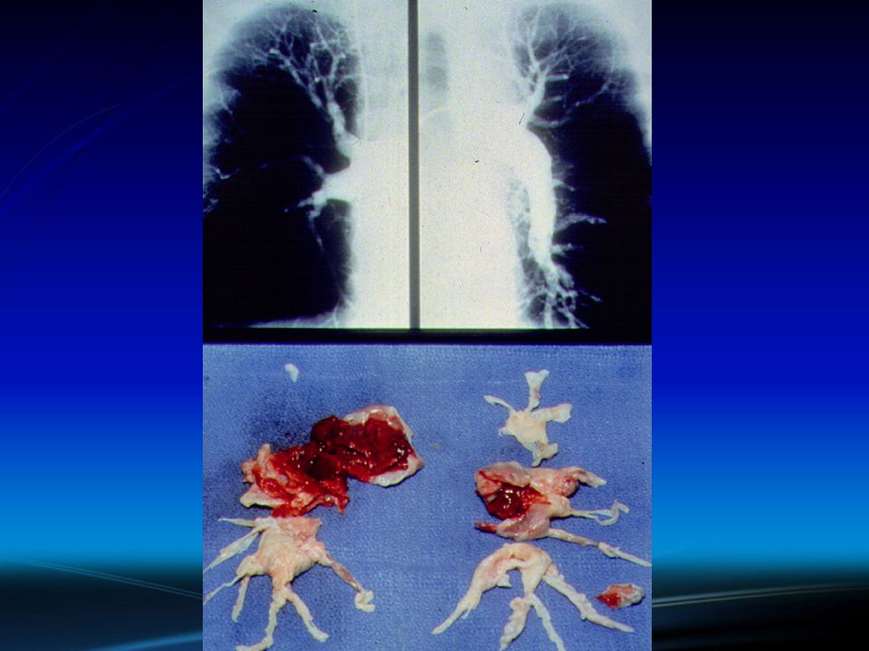 VTE and Cancer
