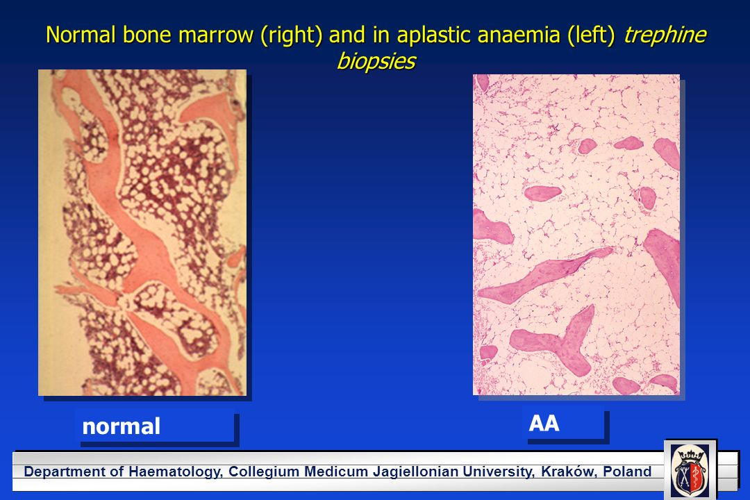 YOUR LOGO HERE Department of Haematology, Collegium Medicum Jagiellonian University, Kraków, Poland Normal bone marrow (right) and in aplastic anaemia (left) trephine biopsies normal AA