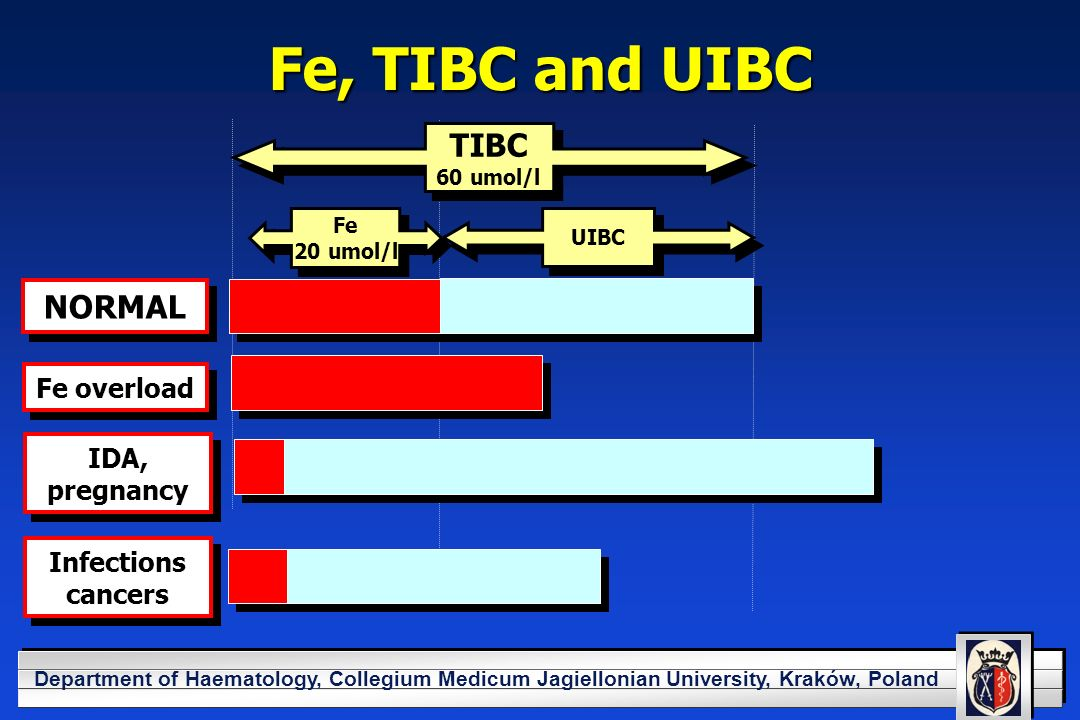 YOUR LOGO HERE Department of Haematology, Collegium Medicum Jagiellonian University, Kraków, Poland Fe, TIBC and UIBC TIBC 60 umol/l TIBC 60 umol/l Fe 20 umol/l Fe 20 umol/l UIBC NORMAL Fe overload IDA, pregnancy Infections cancers Infections cancers