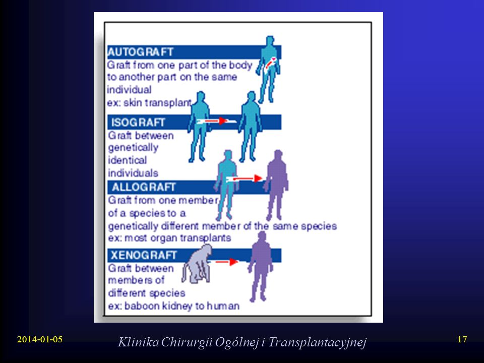 2014-01-05 Klinika Chirurgii Ogólnej i Transplantacyjnej 17