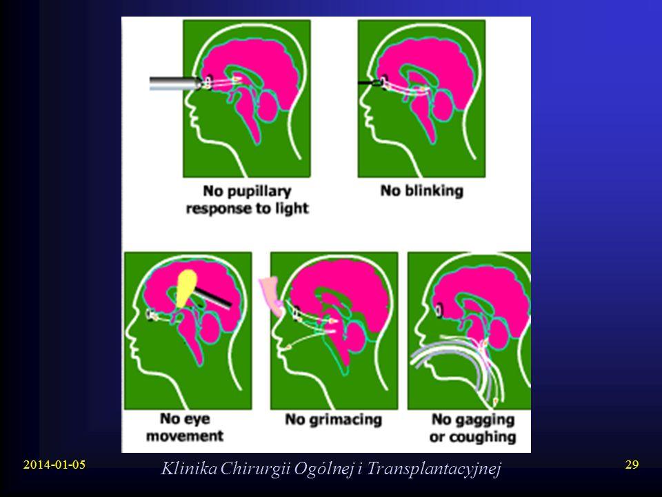 2014-01-05 Klinika Chirurgii Ogólnej i Transplantacyjnej 29