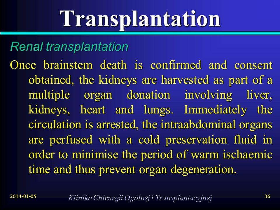 2014-01-05 Klinika Chirurgii Ogólnej i Transplantacyjnej 36 Transplantation Renal transplantation Once brainstem death is confirmed and consent obtain