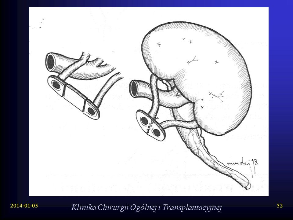 2014-01-05 Klinika Chirurgii Ogólnej i Transplantacyjnej 52