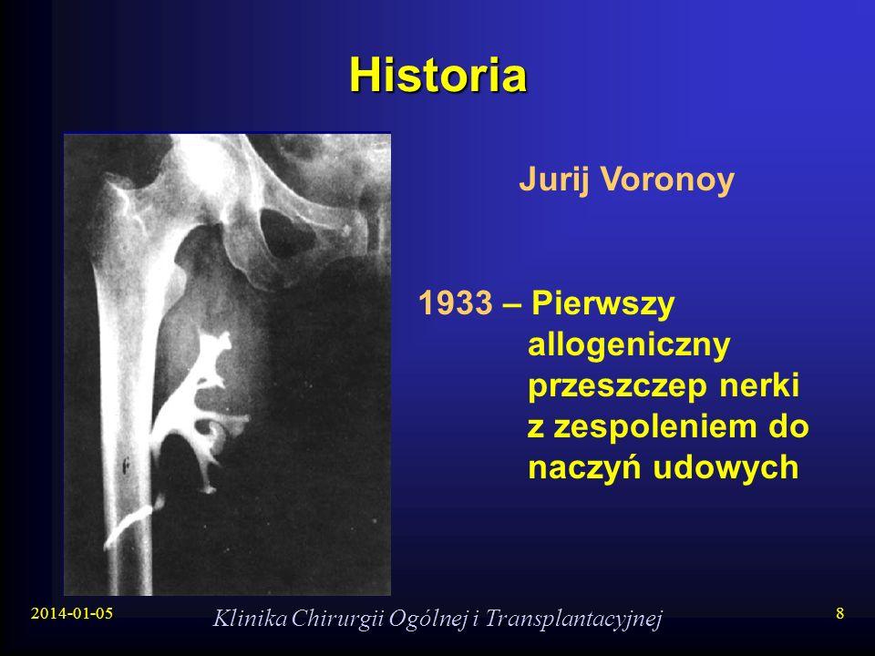 2014-01-05 Klinika Chirurgii Ogólnej i Transplantacyjnej 8 Historia 1933 – Pierwszy allogeniczny przeszczep nerki z zespoleniem do naczyń udowych Juri