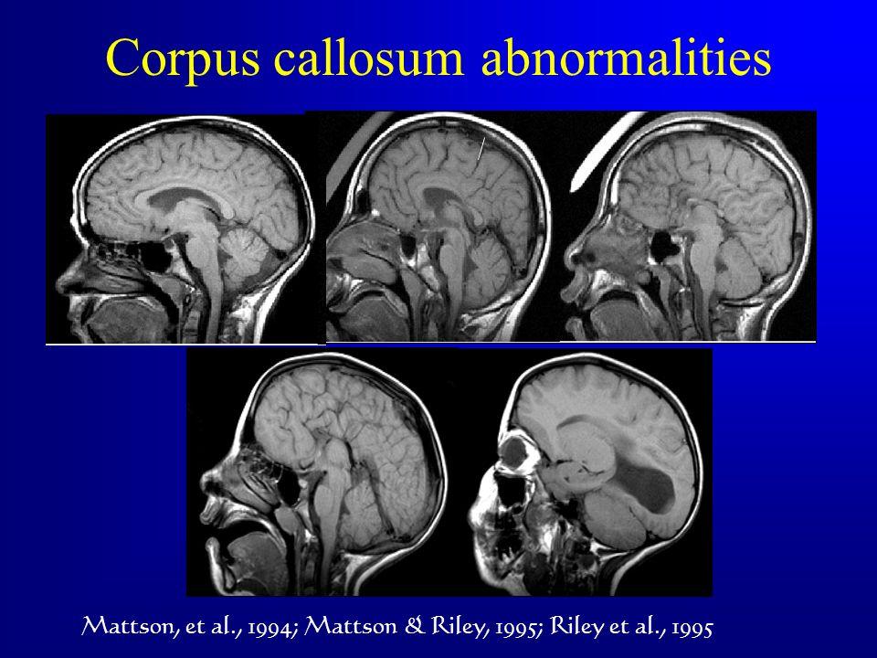 Corpus callosum abnormalities Mattson, et al., 1994; Mattson & Riley, 1995; Riley et al., 1995