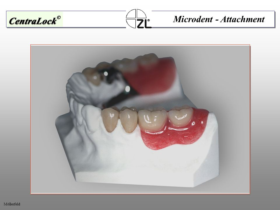 Microdent - Attachment Möllerfeld