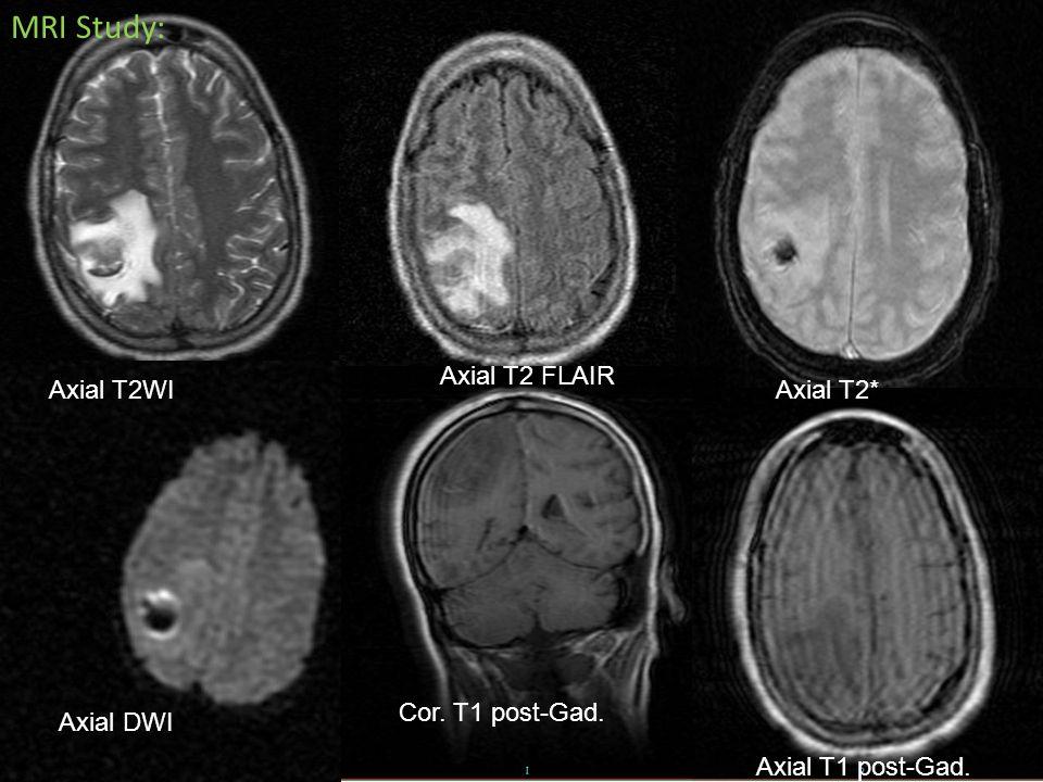 MRI Study: Axial T2WI Axial T2 FLAIR Axial T2* Axial DWI Cor. T1 post-Gad. Axial T1 post-Gad.