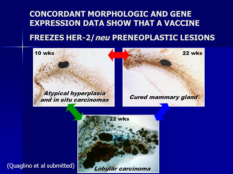 CONCORDANT MORPHOLOGIC AND GENE EXPRESSION DATA SHOW THAT A VACCINE FREEZES HER-2/neu PRENEOPLASTIC LESIONS Atypical hyperplasia and in situ carcinoma