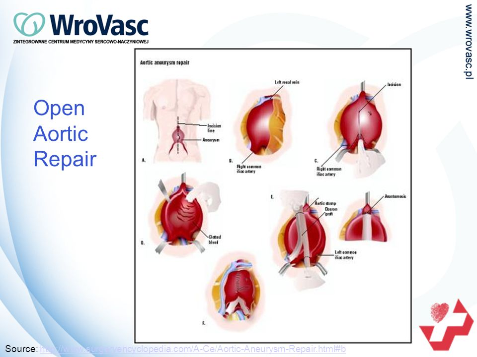 Open Aortic Repair Source: http://www.surgeryencyclopedia.com/A-Ce/Aortic-Aneurysm-Repair.html#bhttp://www.surgeryencyclopedia.com/A-Ce/Aortic-Aneurysm-Repair.html#b