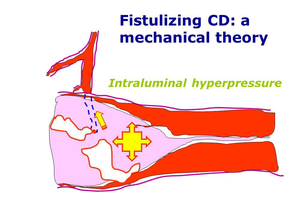 Fistulizing CD: a mechanical theory Intraluminal hyperpressure