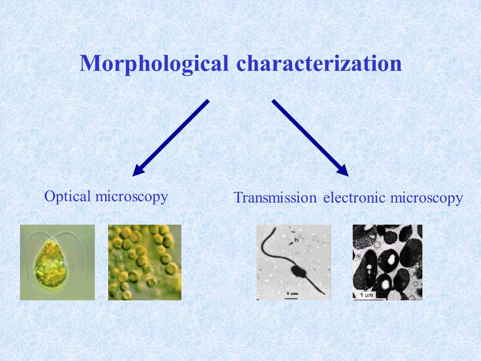 Morphological characterization Optical microscopy Transmission electronic microscopy