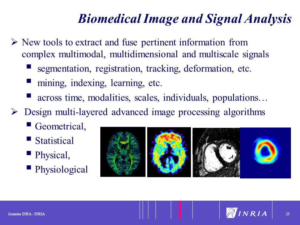 Journées INRA - INRIA23 Biomedical Image and Signal Analysis New tools to extract and fuse pertinent information from complex multimodal, multidimensi