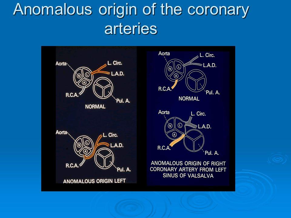 Anomalous origin of the coronary arteries