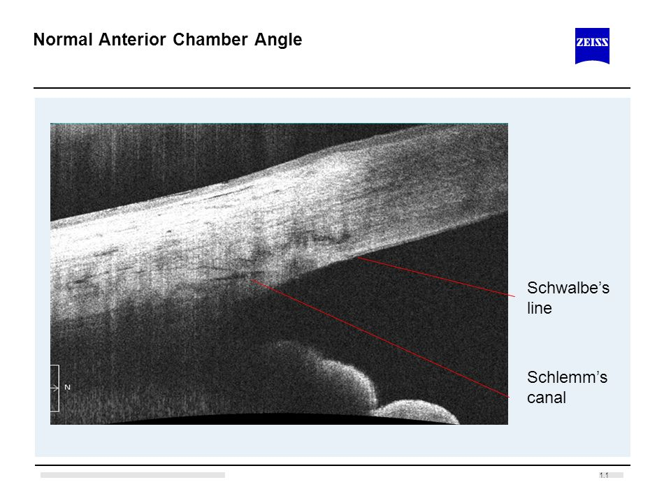 1.1 Normal Anterior Chamber Angle Schlemms canal Schwalbes line