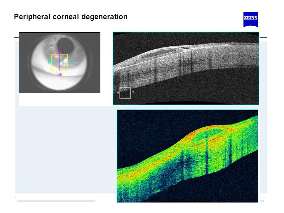 1.1 Peripheral corneal degeneration