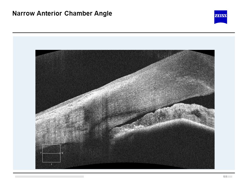 1.1 Narrow Anterior Chamber Angle
