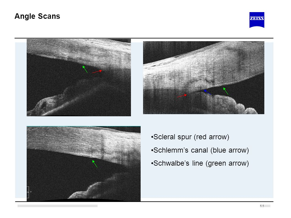 1.1 Angle Scans Scleral spur (red arrow) Schlemms canal (blue arrow) Schwalbes line (green arrow)