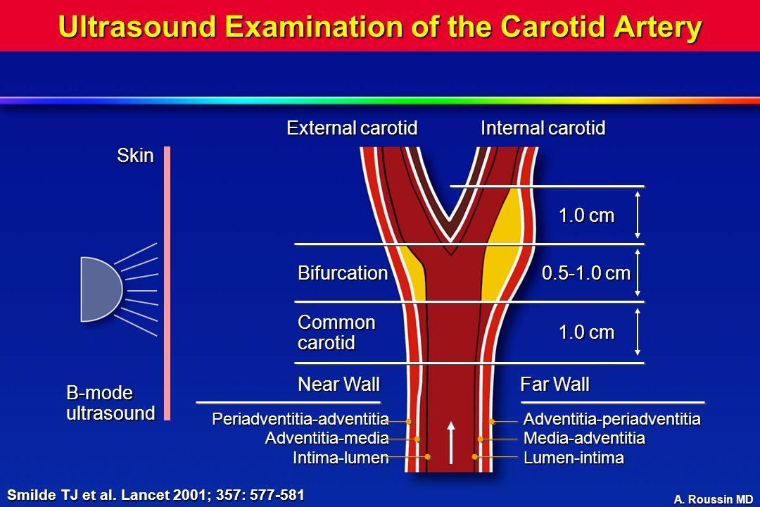 A. Roussin MD Ultrasound Examination of the Carotid Artery B-mode ultrasound Skin External carotid Internal carotid 1.0 cm 0.5-1.0 cm 1.0 cm Bifurcati