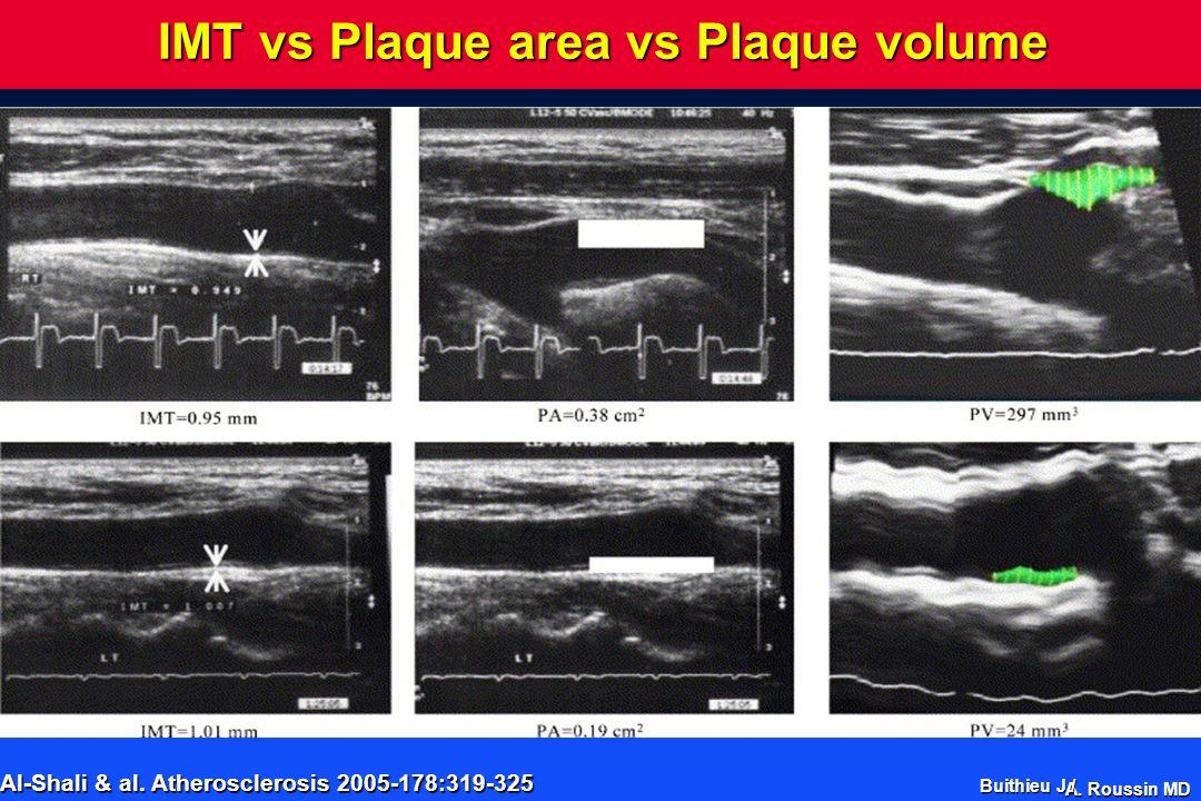 A. Roussin MD IMT vs Plaque area vs Plaque volume CIMT Hypertension Hypertension Total Plaque Area Smoking Smoking Plasma cholesterol Plasma cholester