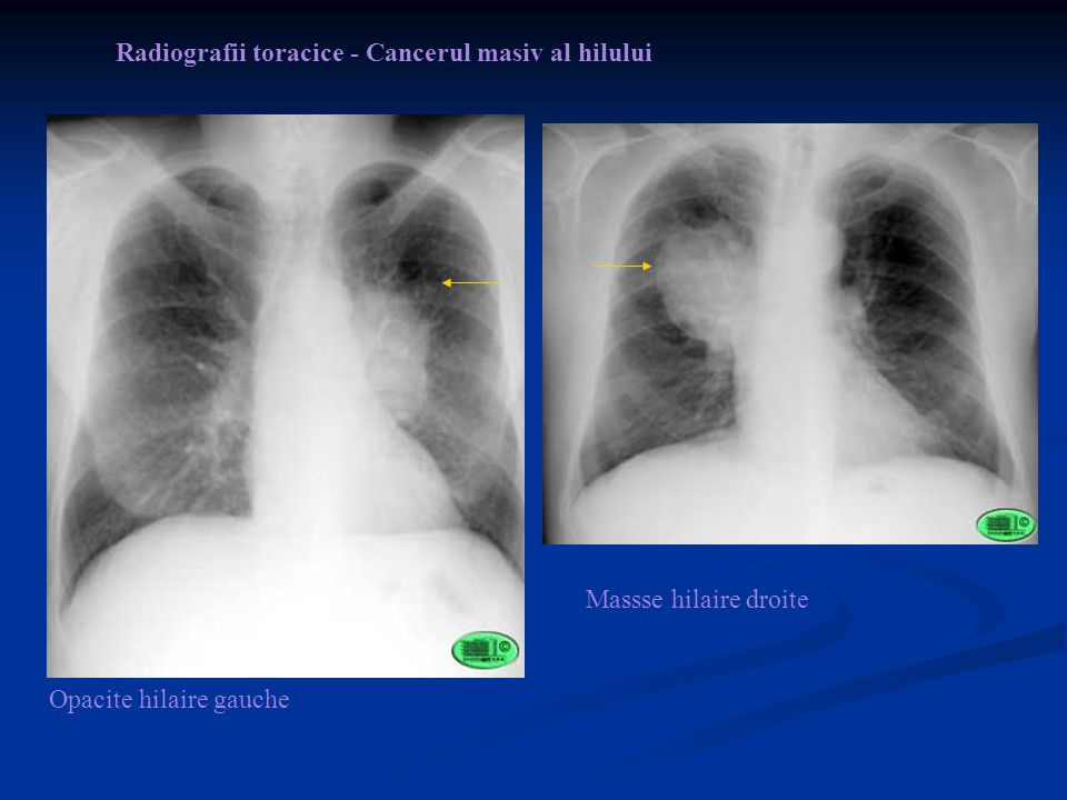 Opacite hilaire gauche Massse hilaire droite Radiografii toracice - Cancerul masiv al hilului