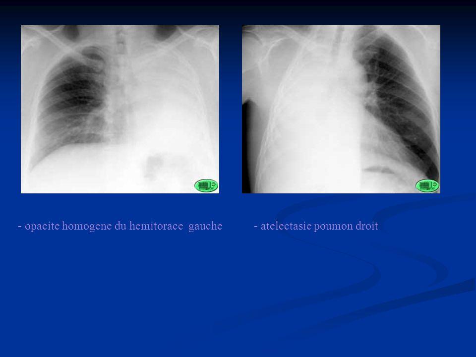 - opacite homogene du hemitorace gauche- atelectasie poumon droit