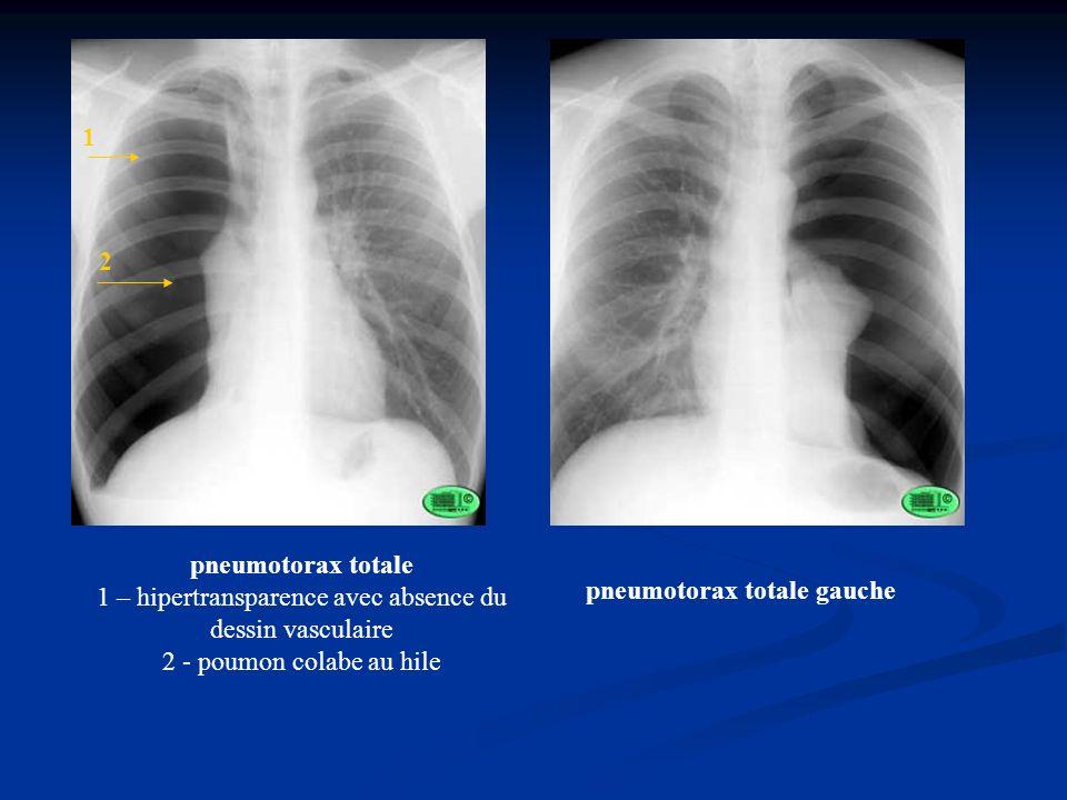 pneumotorax totale 1 – hipertransparence avec absence du dessin vasculaire 2 - poumon colabe au hile 1 2 pneumotorax totale gauche